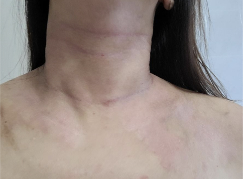 Angel-Testimonial-After